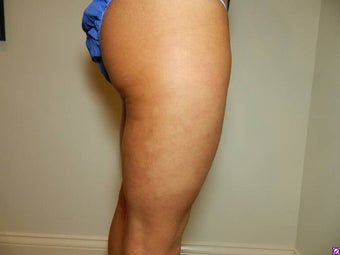 Cellulaze after 1089009