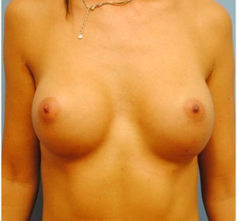 Breast augmentaiton with 300 cc silicone moderate profile plus after 3163520