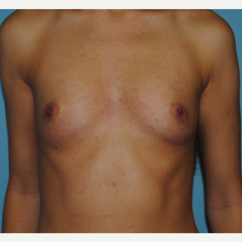 Breast augmentaiton with 300 cc silicone moderate profile plus before 3163520