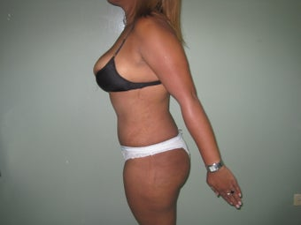 31 years old female treated with tummy tuck 998258