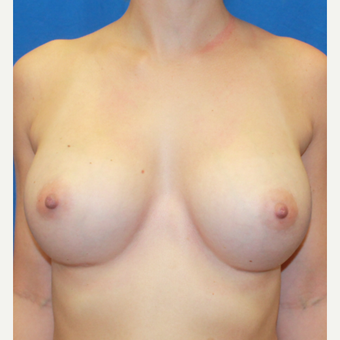30 year old woman treated with Breast Augmentation after 3623047
