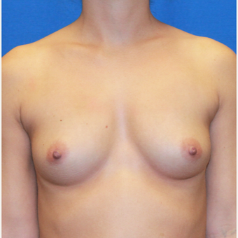 30 year old woman treated with Breast Augmentation before 3623047