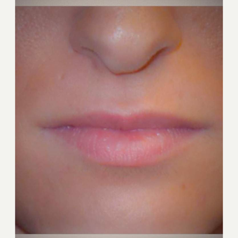 25-34 year old woman treated with Juvederm before 3186185