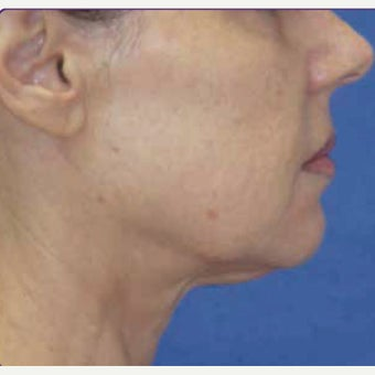 55-64 year old woman treated with skin tightening and wrinkle reduction Treatment after 2108902