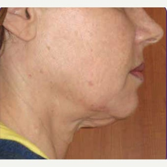 55-64 year old woman treated with skin tightening and wrinkle reduction Treatment before 2108902