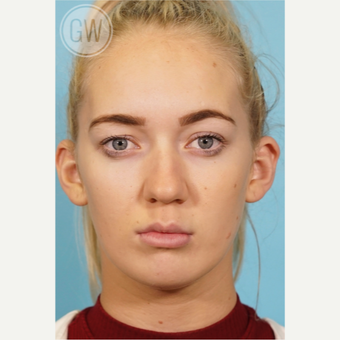 18-24 year old woman treated with Nose Surgery before 3473425