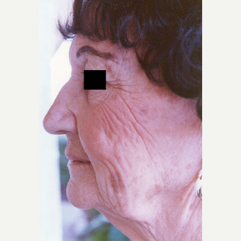 75 and up year old woman treated with Chemical Peel before 3543878
