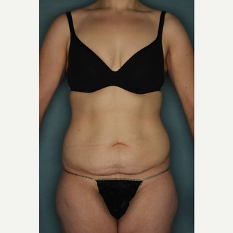 18-24 year old woman treated with Tummy Tuck before 3436180