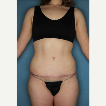 18-24 year old woman treated with Tummy Tuck after 3436180
