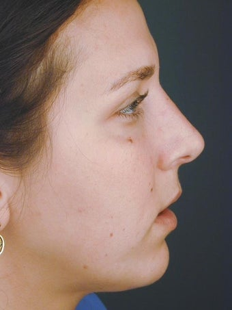 Female Chin Implant after 831449