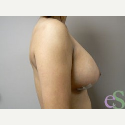 Breast Implant Revision after 3373496