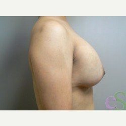 Breast Implant Revision before 3373496