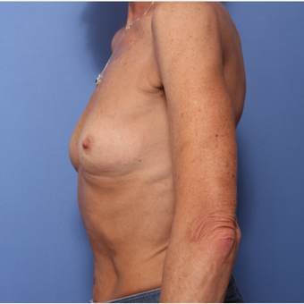 45-54 year old woman treated with Breast Augmentation before 3505845