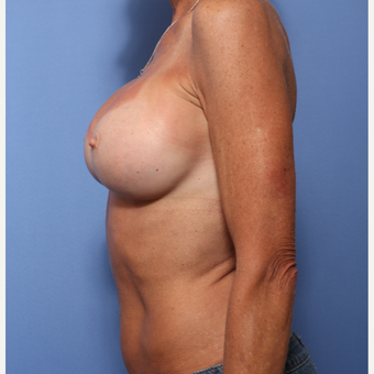 45-54 year old woman treated with Breast Augmentation after 3505845