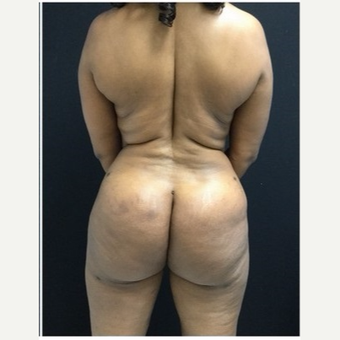 45-54 year old woman treated with Brazilian Butt Lift after 3046536