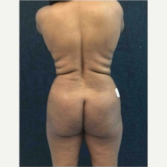 45-54 year old woman treated with Brazilian Butt Lift before 3046536