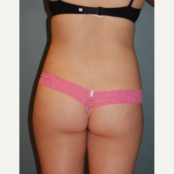 18-24 year old woman treated with Liposuction before 3783691