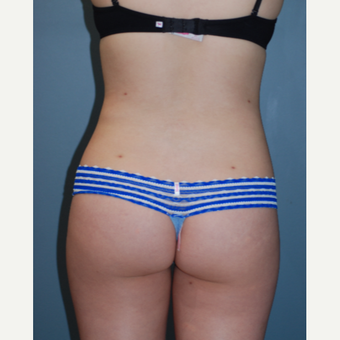 18-24 year old woman treated with Liposuction after 3783691
