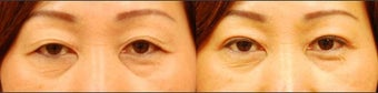 Asian Eyelid Surgery for Excess Skin before 894632