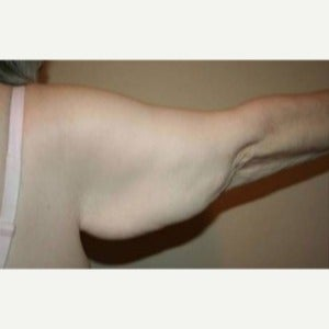 65-74 year old woman treated with Arm Lift 1809404