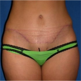 35-44 year old woman treated with Tummy Tuck after 3009740