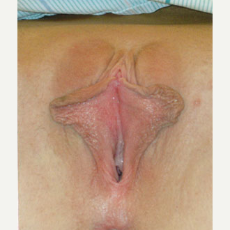 Labiaplasty before 2487773