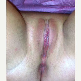 Labiaplasty after 2487773