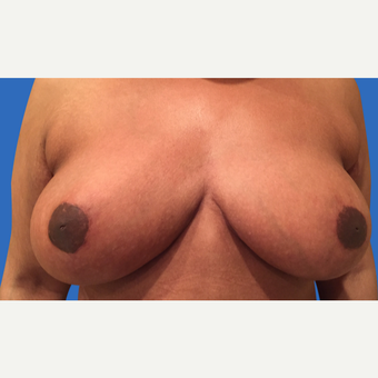 35-44 year old woman treated with Breast Reduction after 3280911