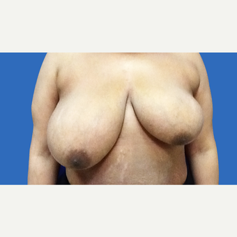 35-44 year old woman treated with Breast Reduction before 3280911