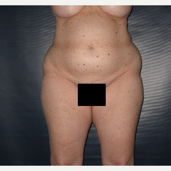 45-54 year old woman treated with Liposuction before 3454902
