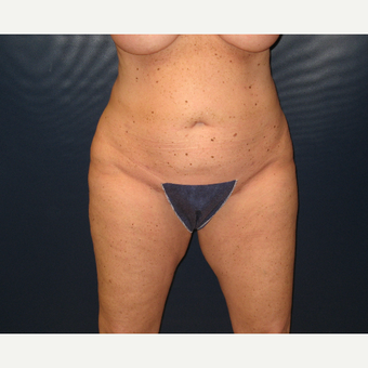 45-54 year old woman treated with Liposuction after 3454902