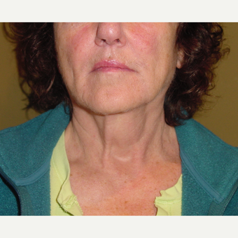 55-64 year old woman treated with Neck Lift before 3621584