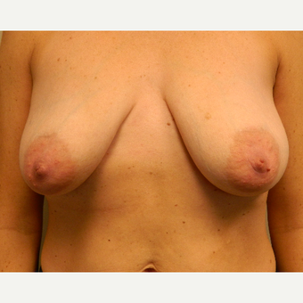 35-44 year old woman treated with Breast Lift before 3185652