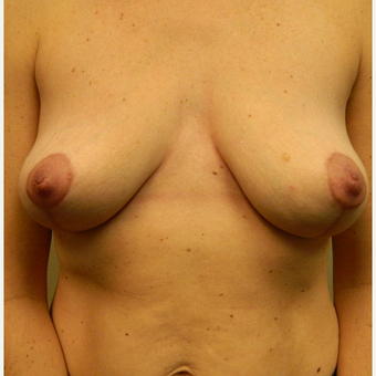 35-44 year old woman treated with Breast Lift after 3185652