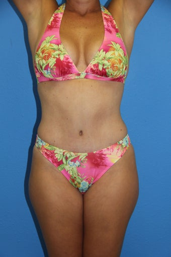 Tummy Tuck after 1381803