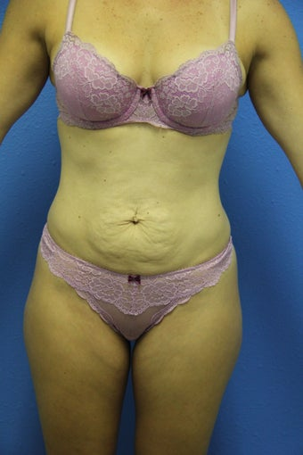Tummy Tuck before 1381803