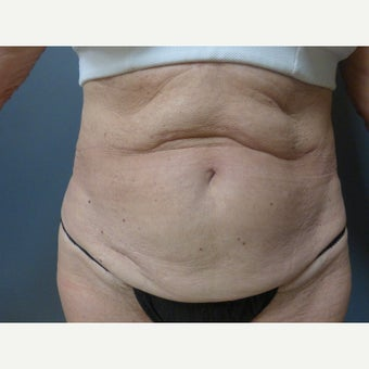 65-74 year old woman treated with Tummy Tuck before 1819218