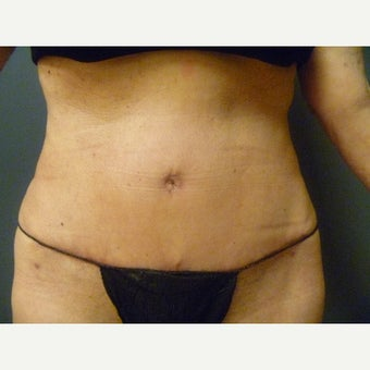 65-74 year old woman treated with Tummy Tuck after 1819218