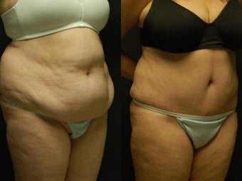 "50 y/o Female, 5'7"", 170 lbs 10 weeks after staged back and flank liposuction then abdominoplasty after 1460618"