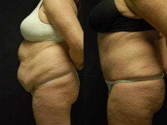 "50 y/o Female, 5'7"", 170 lbs 10 weeks after staged back and flank liposuction then abdominoplasty 1460618"