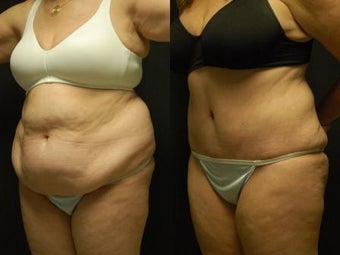 "50 y/o Female, 5'7"", 170 lbs 10 weeks after staged back and flank liposuction then abdominoplasty before 1460618"