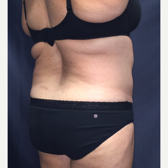 45-54 year old woman treated with SculpSure after 3725435