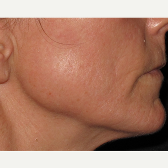 45-54 year old woman treated with Microneedling after 2713758