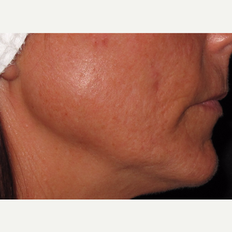 45-54 year old woman treated with Microneedling before 2713758