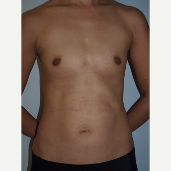 35-44 year old woman treated with Breast Fat Transfer (4 Months Post- Op) before 3082292