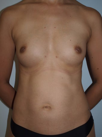 35-44 year old woman treated with Breast Fat Transfer (4 Months Post- Op) after 3082292