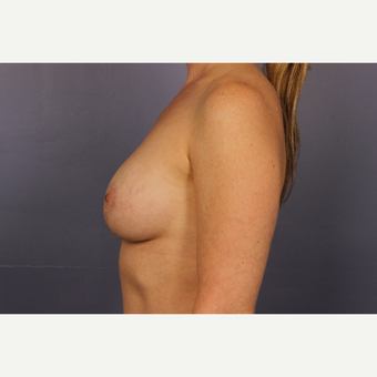 35-44 year old woman treated with Breast Lift with Implants after 3817121