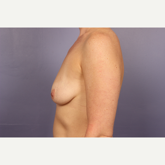 35-44 year old woman treated with Breast Lift with Implants before 3817121