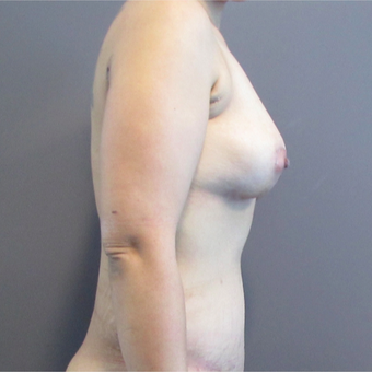33 year old woman treated with Mommy Makeover after 3406274