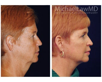 Facial Rejuvenation before 1285304